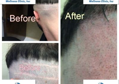 FUT and FUE Scar cover up using SMP